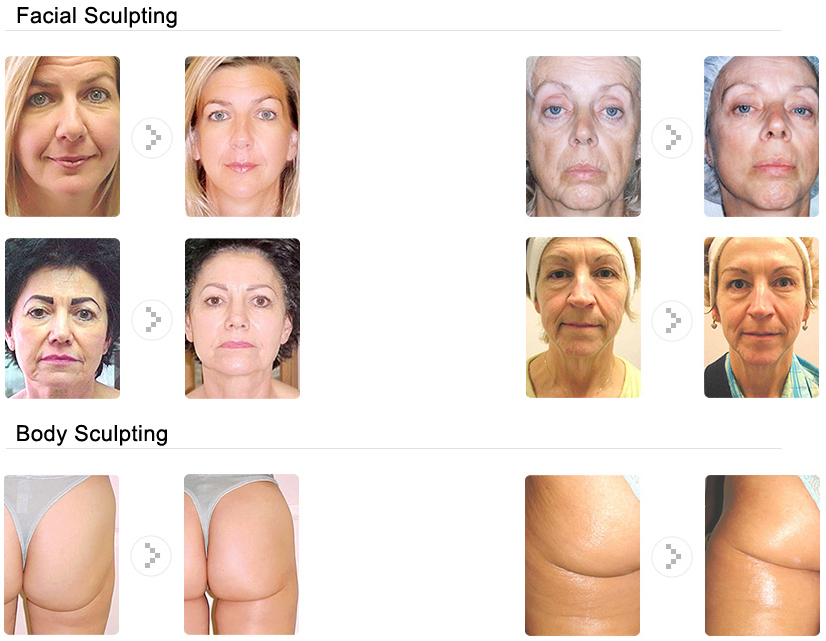 The micro current facial sculpting opinion